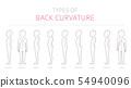 Types of kid`s back curvature. Medical disease 54940096