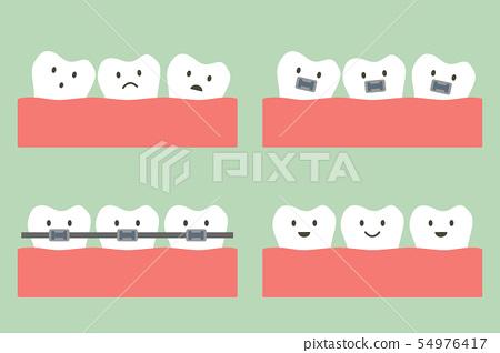 dental orthodontics treatment with teeth braces 54976417