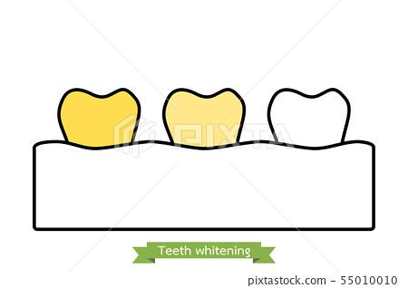 teeth whitening 55010010