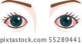 眼睛症狀充血性結膜炎 55289441