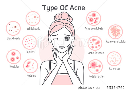 skin care type of acne 55334762