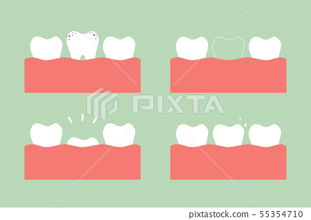 step of caries to first teeth 55354710