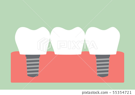 dental bridge 55354721