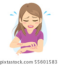 Woman scratching arms suffering allergy itchy skin 55601583