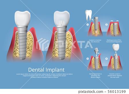 Human teeth and Dental implant Vector Illustration 56013199