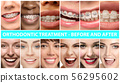 Beautiful close up portraits, concept of teeth treatment 56295602