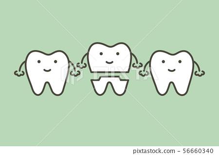 dental crown 56660340