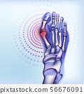 Bones of foot with rheumatoid arthritis 56676091