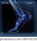 Medial view x ray of bones the of foot. 56676218