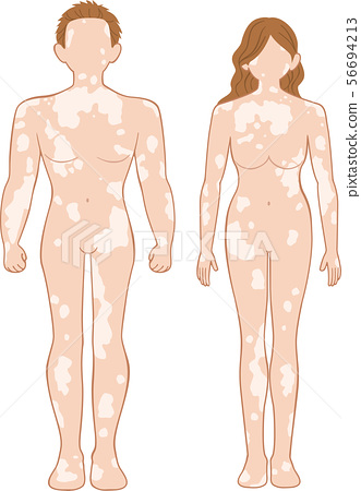 Vitiligo Full Body Front Men And Women Set Stock Illustration 56694213 Pixta