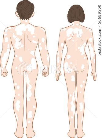 Vitiligo Full Body Behind Men And Women Set Stock Illustration 56699500 Pixta