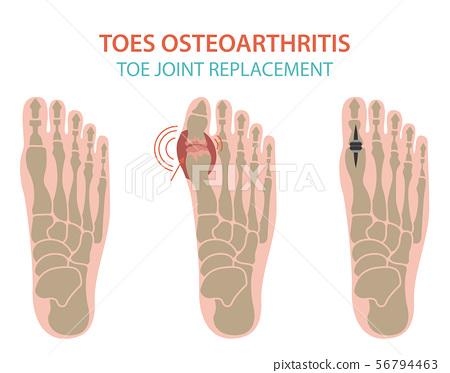 Arthritis, osteoarthritis medical infographic 56794463
