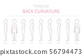 Types of kid`s back curvature. Medical disease 56794473