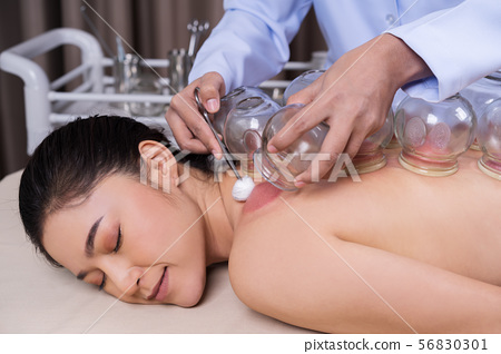 woman receiving cupping treatment on back 56830301