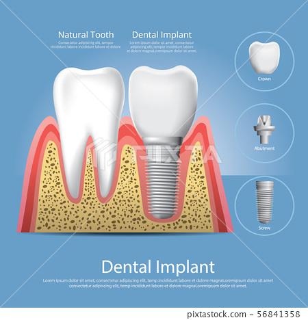 Human teeth and Dental implant Vector 56841358