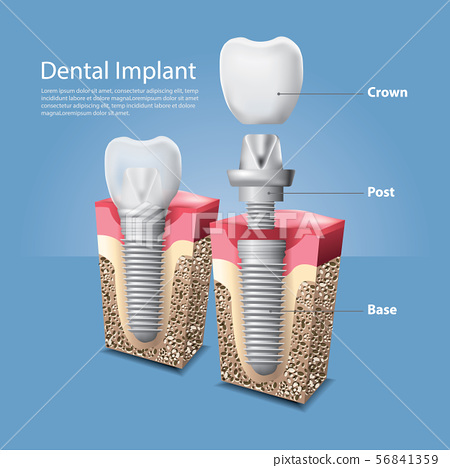 Human teeth and Dental implant Vector 56841359