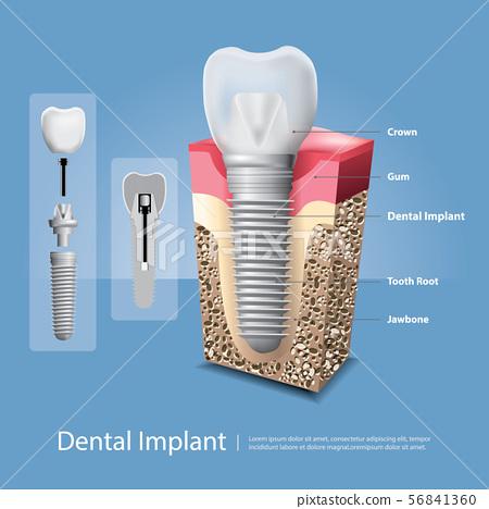Human teeth and Dental implant Vector 56841360