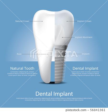 Human teeth and Dental implant Vector 56841361