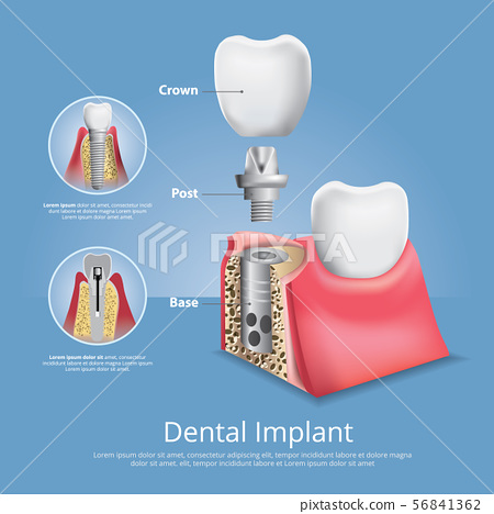 Human teeth and Dental implant Vector 56841362