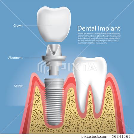 Human teeth and Dental implant Vector 56841363