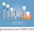 Human teeth and Dental implant Vector 56841364