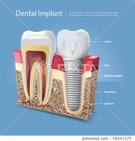 Human teeth and Dental implant Vector 56841375