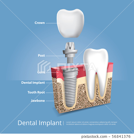 Human teeth and Dental implant Vector 56841376