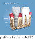 Human teeth and Dental implant Vector 56841377