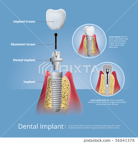Human teeth and Dental implant Vector 56841378