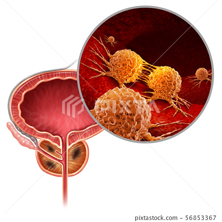 Cancer Of The Prostate 56853367