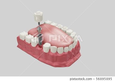 Dental Implants Treatment Procedure. Medically accurate 3D illustration dentures concept. 56895895