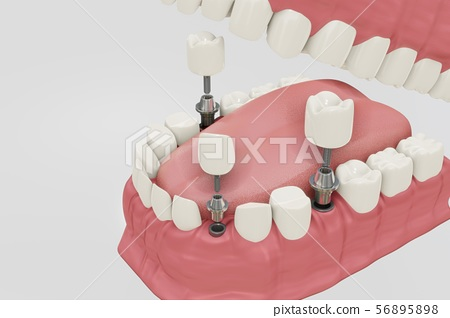 Dental Implants Treatment Procedure. Medically accurate 3D illustration dentures concept. 56895898