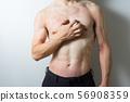 피부염의 남자 56908359