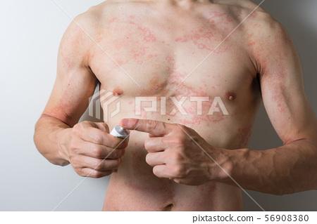 Dermatitis men applying ointment 56908380