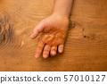 มือเด็กที่ถูกไฟไหม้ 57010127