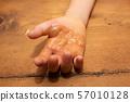 화상을 한 아이의 손 57010128