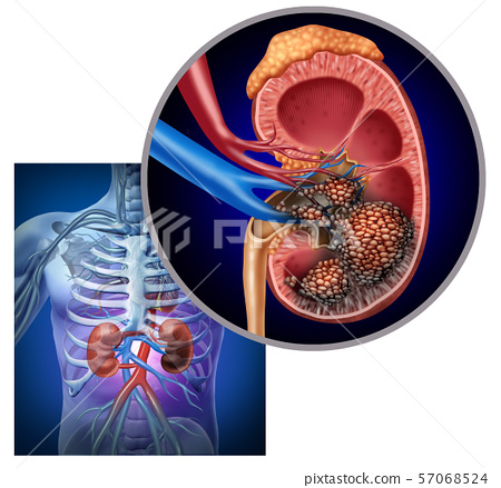 Cancer Of The Kidney 57068524