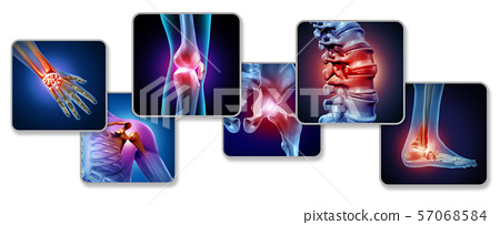 Pain Of The Joints 57068584
