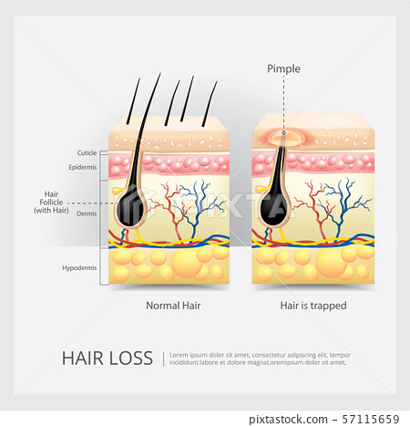 Hair Loss Structure Vector Illustration 57115659
