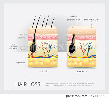 Hair Loss Structure Vector Illustration 57115660