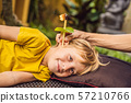 The boy gets a procedure with an ear candle, children's ears health, good hearing, earwax 57210766
