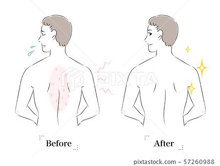 背部皮膚在男人之前和之後擔心癢 57260988