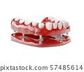 Human teeth and Dental implant. 3d illustration 57485614