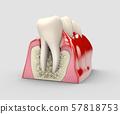 Human tooth, dental implant, stock 3d illustration. 57818753