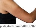 햇볕에 피부가 벗겨져 버린 여자의 팔뚝 58037207