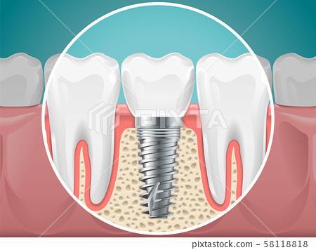 Stomatology illustrations. Dental implants and healthy teeth 58118818