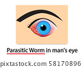 Closeup Parasitic Worms in human's eye, vector art 58170896