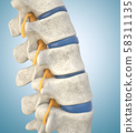 Human lumbar spine model demonstrating thinned 58311135