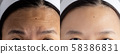 forehead wrinkles problem. pictures compared effect Before and After treatment for forehead wrinkles skin problem in woman to solve skin problem for better skin result 58386831
