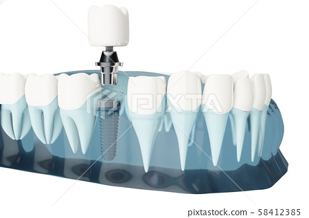 Component of Dental implants. Blue color transparent. 3d illustrations 58412385